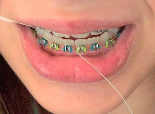 Dental Floss Mencegah Timbulnya Karang Gigi Drg Dio Nella