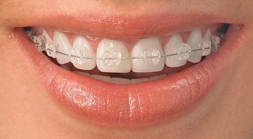 kawat-gigi-surabaya