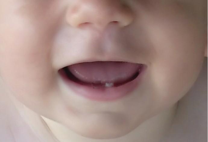 gigi perdana bayi