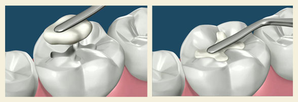 tambalan gigi