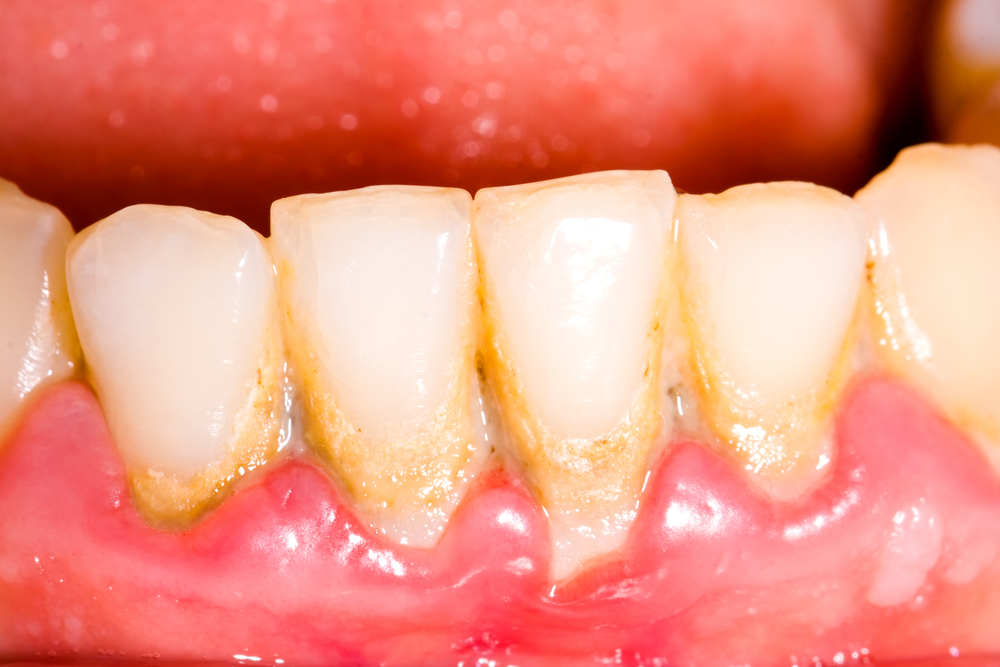 mencegah timbulnya karang gigi